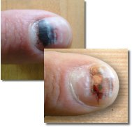 Fixing a Cracked Fingernail | Offroaders.com